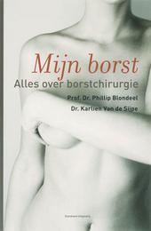 Mijn borst : alles over borstchirurgie