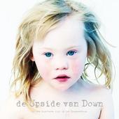 De upside van Down : een positieve kijk op het Downsyndroom