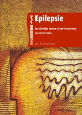 Epilepsie : een tijdelijke storing in het functioneren van de hersenen