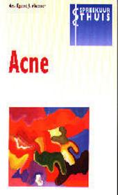 Acne : een lastige huidaandoening