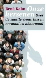 Onze hersenen : over de smalle grens tussen normaal en abnormaal